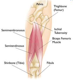 proximal-hamstring-tear
